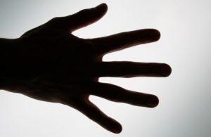 手掌多汗症の人の手